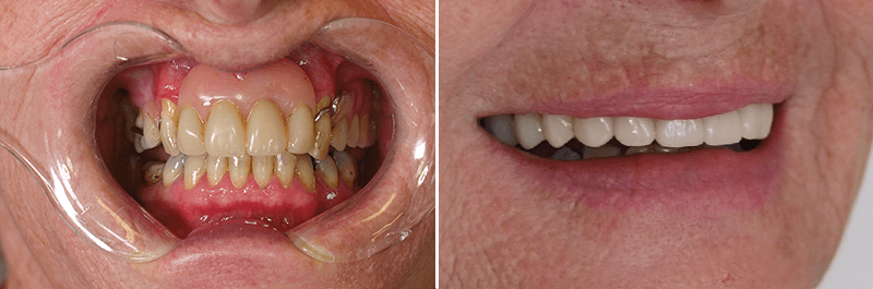 Close up of Before and after image showing how teeth have been improved