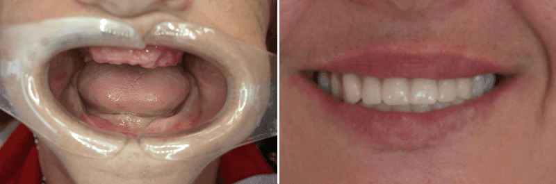 Before and after image showing transformation of teeth